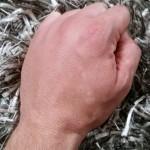 bienenstick-hand